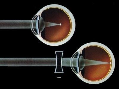 imagine cu miopia