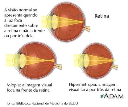 imagini miopia
