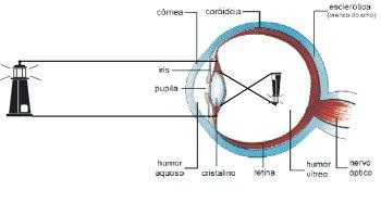 Ochiul-defecte de vedere calcularea dioptriilor pentru corectarea vederii - miopia