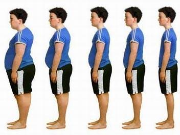 imagini obezitate