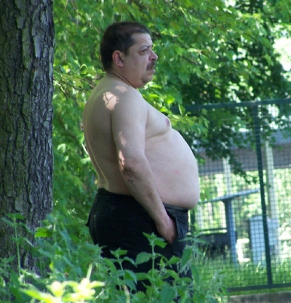 imagine cu obezitatea