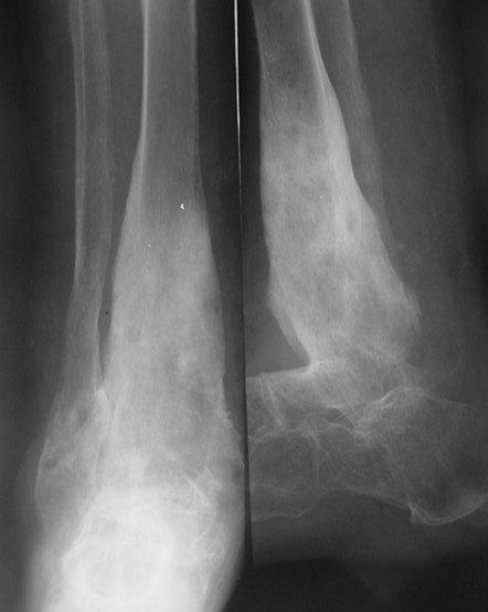 Osteomielita sugarului