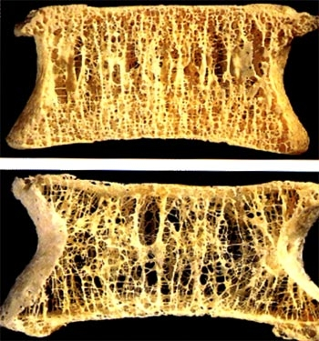 imagini osteoporoza