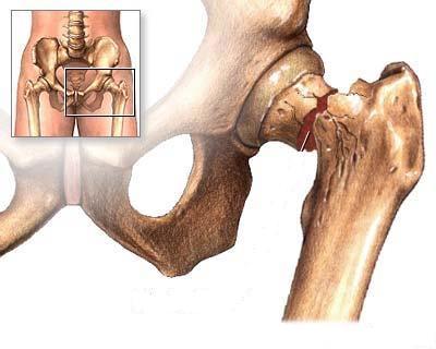 poza despre osteoporoza