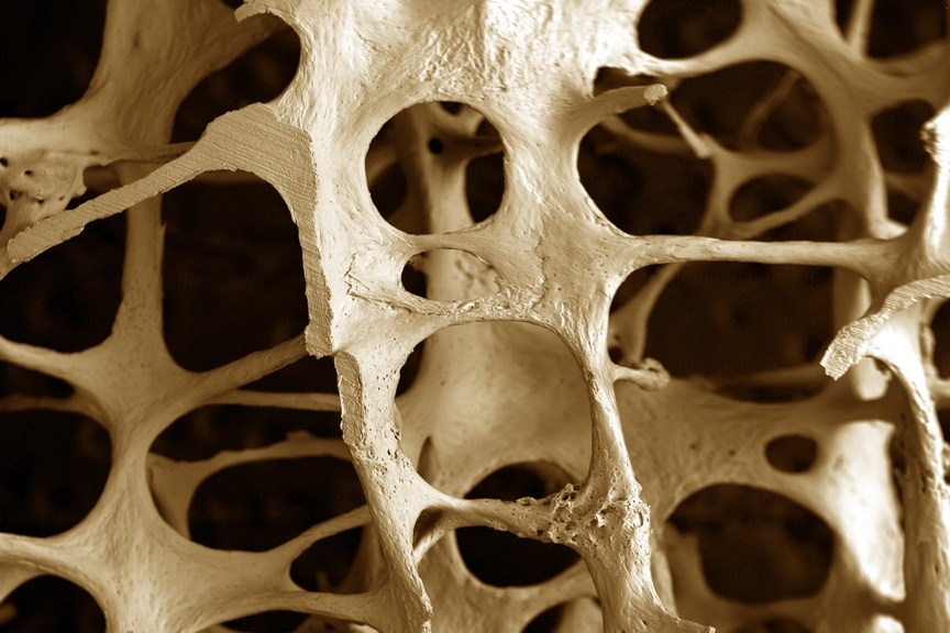 images osteoporoza
