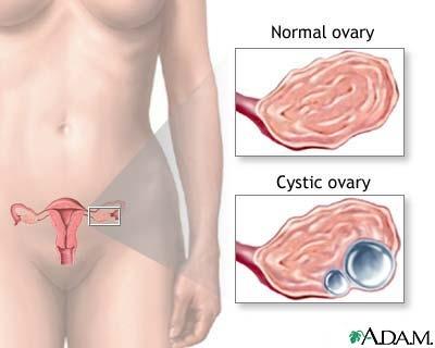 imagine cu ovarian