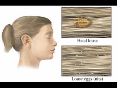 Pediculoza capului (paduchii)
