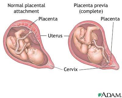 imagini placenta