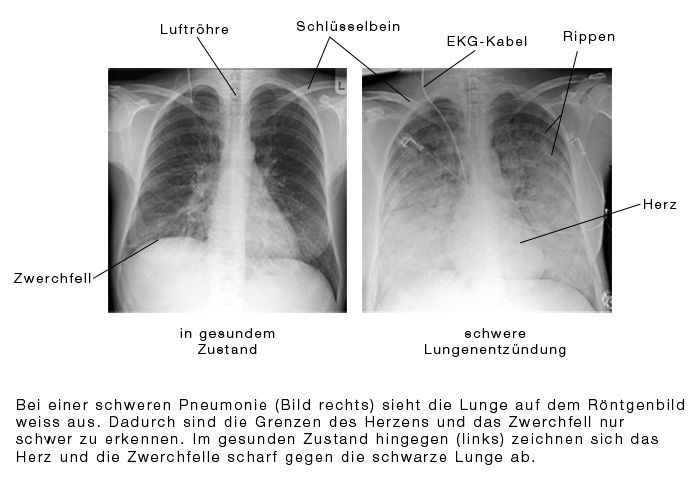 imagini pneumonie