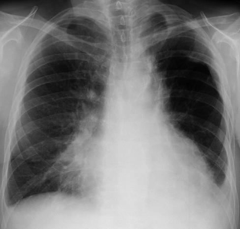 imagini pneumoniile