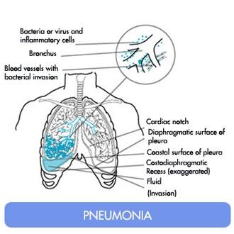 Pneumoniile virusale