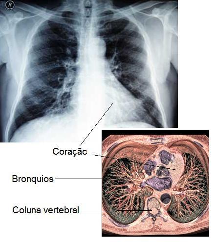 imagine cu pneumopatia