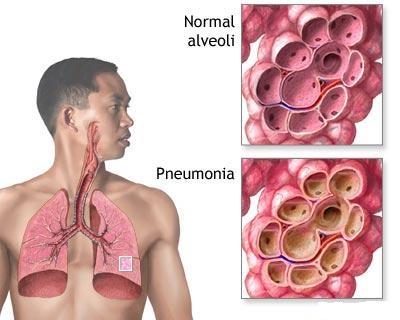 Pneumopatiile micotice si prin parazitoze animale