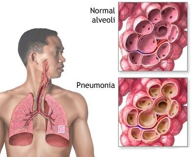 Pneumopatiile acute determinate de agenti neclasificati sau neidentificati