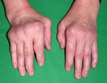 poza despre poliartrita reumatoida