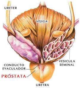 poza despre prostata