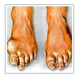 Modalitati terapeutice - rolul tratamentului pentru reumatism