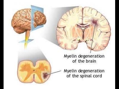 imagini scleroza