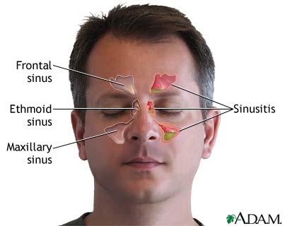 poza despre sinus