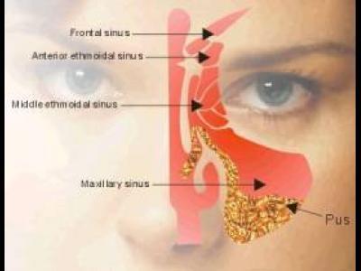 poza despre sinusurile