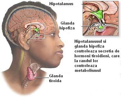 Care sunt disfunctiile glandei tiroidiene?