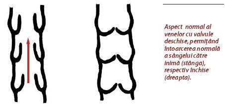 poza despre tromboza