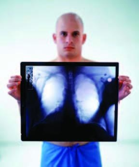 Tuberculoza verucoasa