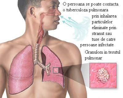 imagini tuberculoza