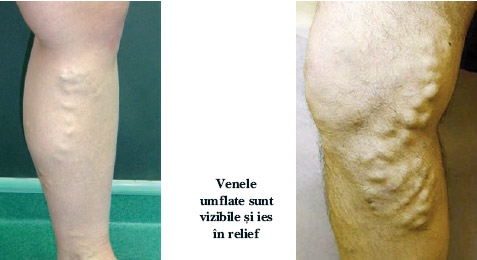 Varicele - Cauze, Simptome, Tratament | Ayurmed