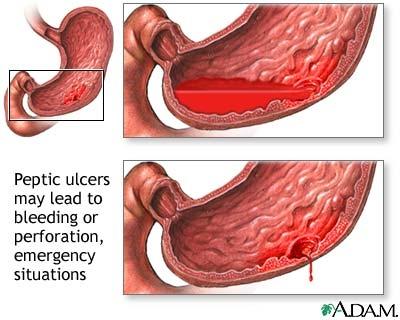 Ulcer primitiv al intestinului subtire