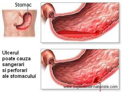 Ulcerele de gamba