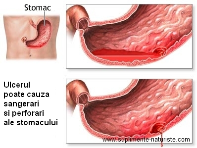 Ulcerele si nodulii vulvari