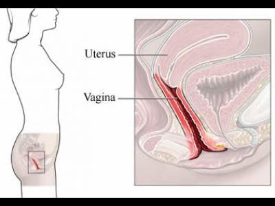 Vaginita