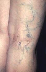 Boala varicoasa - de ce apar varicele? - tratamente