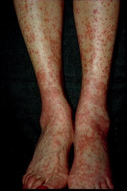 Procesele vasculare inflamatorii si infectioase. vasculitele